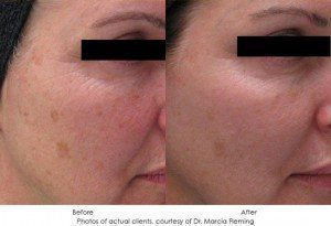 Photorejuvenation-img10