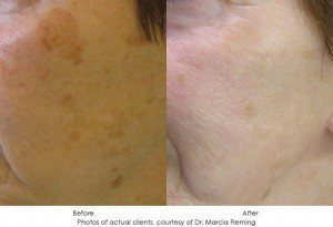 Photorejuvenation-img12