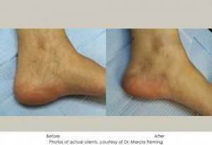 Sclerotherapy-1-300x205