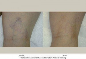 Sclerotherapy-2-300x205