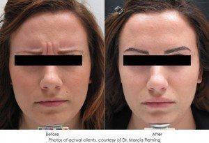 botox-cosmetic-img1