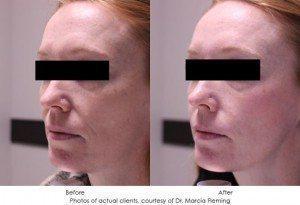 botox-cosmetic-img10