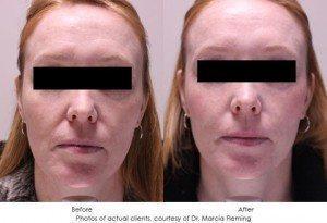 botox-cosmetic-img11