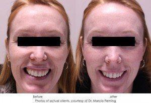 botox-cosmetic-img12