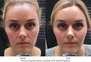 botox-cosmetic-img15