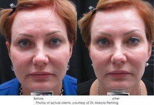 botox-cosmetic-img17