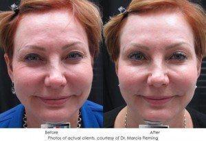 botox-cosmetic-img18