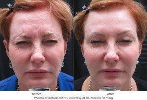 botox-cosmetic-img19