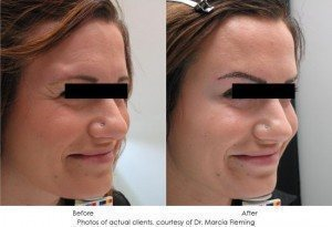 botox-cosmetic-img2