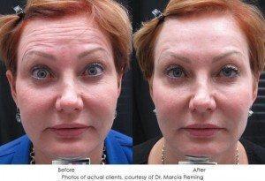 botox-cosmetic-img20