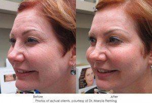 botox-cosmetic-img21