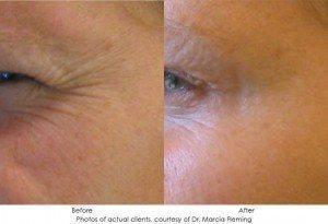 botox-cosmetic-img22