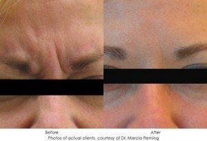 botox-cosmetic-img23