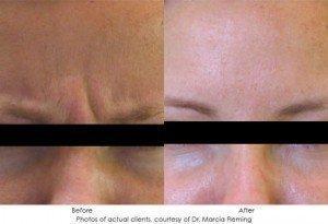 botox-cosmetic-img24