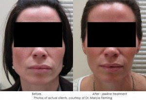 botox-cosmetic-img25