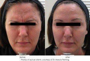 botox-cosmetic-img26