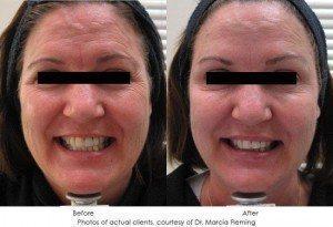 botox-cosmetic-img27