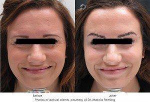 botox-cosmetic-img3