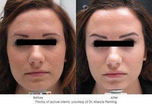 botox-cosmetic-img4