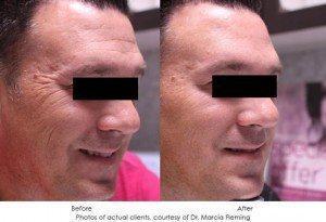 botox-cosmetic-img6
