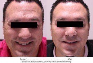 botox-cosmetic-img7