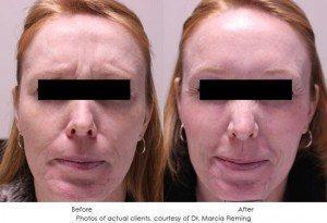 botox-cosmetic-img8