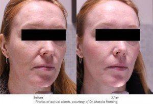 botox-cosmetic-img9