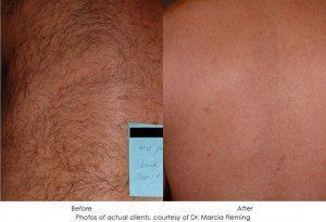laser-hair-removal-img1