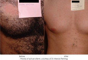 laser-hair-removal-img2