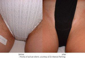 laser-hair-removal-img3