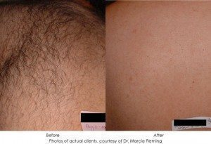 laser-hair-removal-img4-1