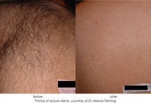laser-hair-removal-img4