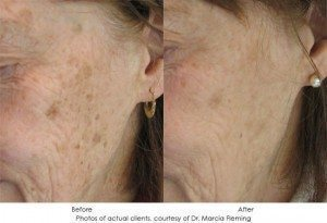 photorejuvenation-img1-3